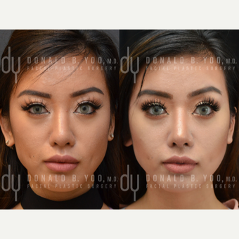 Asian Rhinoplasty with Rib cartilage before 3739398