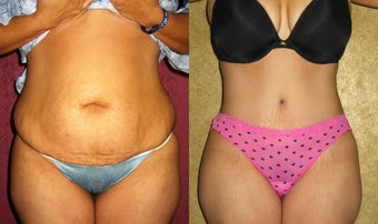 tummy tuck before 232450