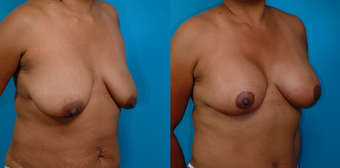 39-year-old woman treated with a Mommy Makeover. before 1058379