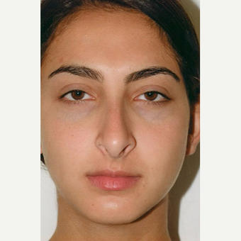 17 or under year old man treated with Rhinoplasty before 3406269