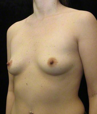28 year old woman treated with Breast Augmentation 3103622