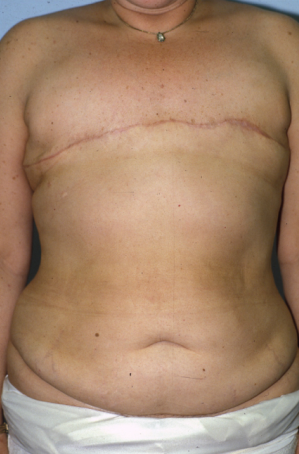Breast Reconstruction  before 1357608