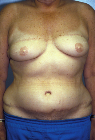 Breast Reconstruction  after 1357608