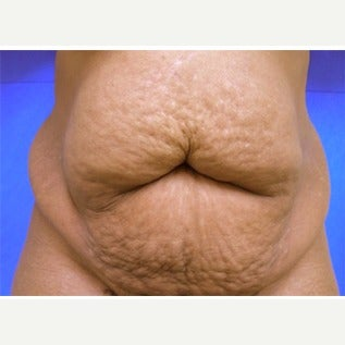 45-54 year old woman treated with Tummy Tuck before 1838731