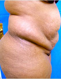 45-54 year old woman treated with Tummy Tuck 1838731