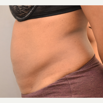 40 year old woman treated with Tumescent Liposuction after 3748587