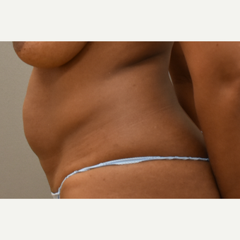 40 year old woman treated with Tumescent Liposuction before 3748587