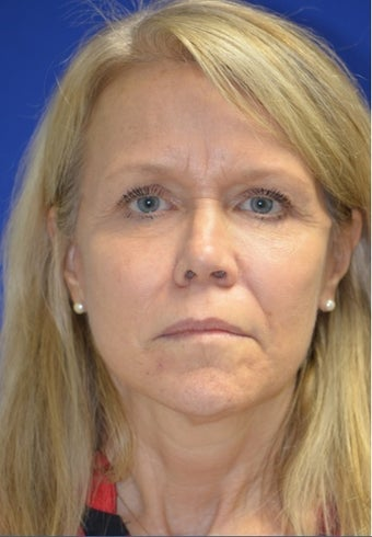 Facelift/Necklift with Fat grafting. Dr. Levesque after 3494897