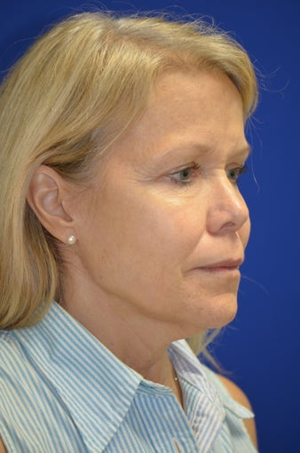 Facelift/Necklift with Fat grafting. Dr. Levesque 3494897