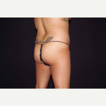 25-34 year old woman treated with Brazilian Butt Lift before 3644624