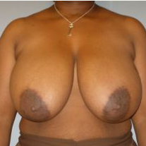 35-44 year old woman treated with Breast Reduction before 3280707