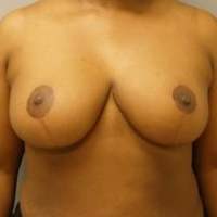 35-44 year old woman treated with Breast Reduction after 3280707