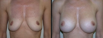 Breast Augmentation before 1231983