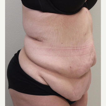 18-24 year old woman treated with Tummy Tuck before 3065909