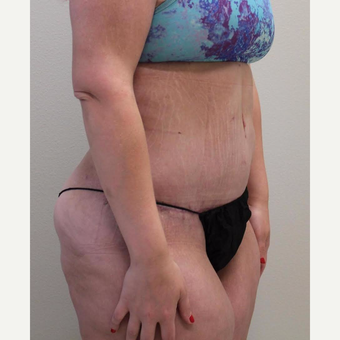 18-24 year old woman treated with Tummy Tuck after 3065909