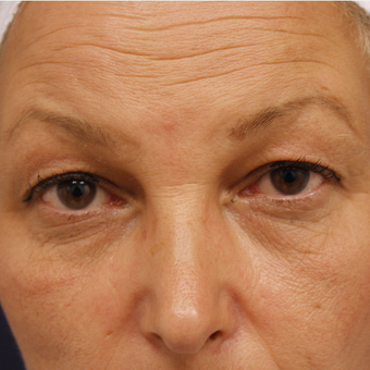 45-54 year old woman treated with Eyelid Surgery before 3730710