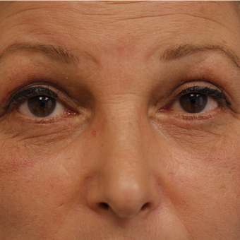 45-54 year old woman treated with Eyelid Surgery after 3730710