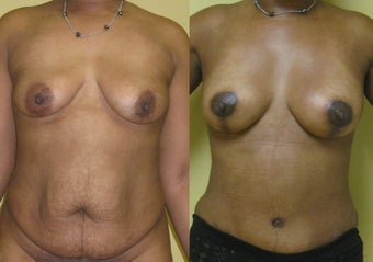 Breast Augmentation and Lift Using Natural Fat before 1437616