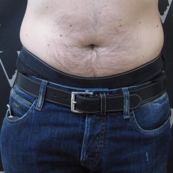 Fat reduction for male love-handles before 3265126