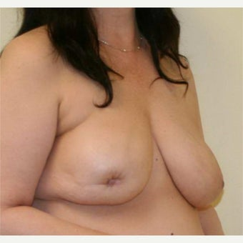 45-54 year old woman treated with Nipple Surgery