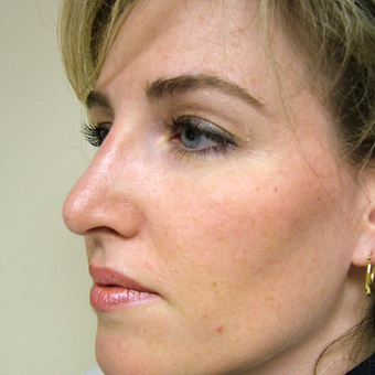35-44 year old woman treated with Rhinoplasty after 3320873