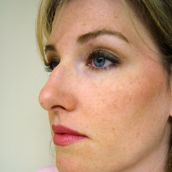 35-44 year old woman treated with Rhinoplasty before 3320873
