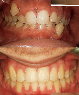 17 or under year old man treated with Braces