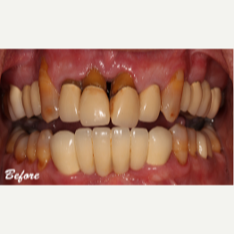 45-54 year old man treated with Dental Implants before 3577715