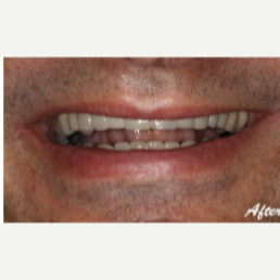 45-54 year old man treated with Dental Implants after 3577715
