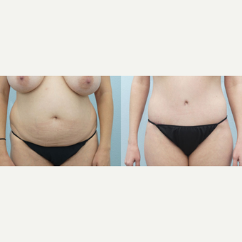 38 yr old Female - Body Lift and Breast Reduction before 3099794