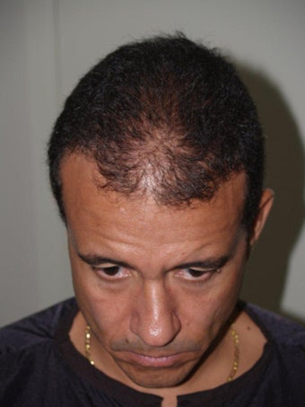 Hair Transplant - 3400 grafts before 207691