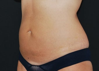 CoolSculpting after 1514786