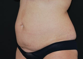 CoolSculpting before 1514786