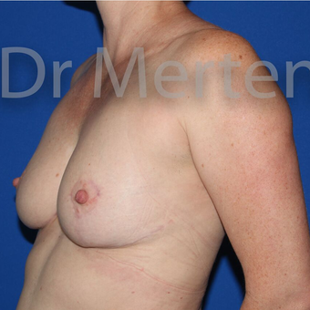 Breast Reduction after 3681350