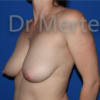 Breast Reduction before 3681350