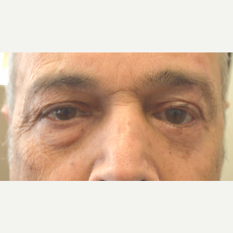 64 year old male, with left lower eyelid retraction repair after previous eyelid operation after 3090234