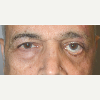 64 year old male, with left lower eyelid retraction repair after previous eyelid operation before 3090234