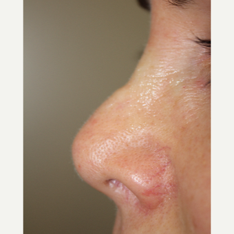 45-54 year old woman treated with Non Surgical Nose Job before 3706370