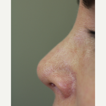 45-54 year old woman treated with Non Surgical Nose Job after 3706370
