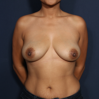 25-34 year old woman treated with Breast Augmentation (view 1 of 2) before 2976195
