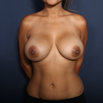 25-34 year old woman treated with Breast Augmentation (view 1 of 2) after 2976195