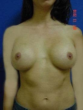 Breast Augmentation after 481484