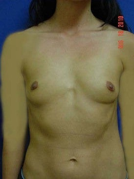 Breast Augmentation before 481484