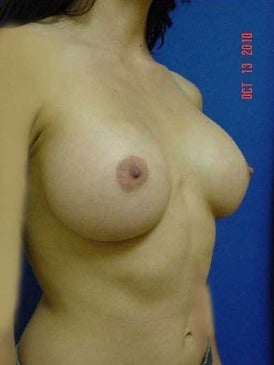 Breast Augmentation 481484