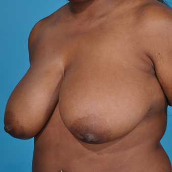 25-34 year old woman treated with Breast Reduction before 3777010