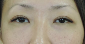 Asian eyelid surgery for excess skin