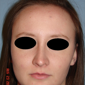 18-24 year old woman treated with Rhinoplasty after 3287920
