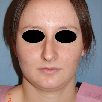 18-24 year old woman treated with Rhinoplasty before 3287920