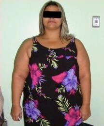 29 yr old female treated for severe obesity before 1091297