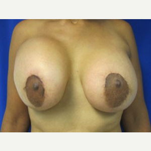 Breast Lift before 3055107